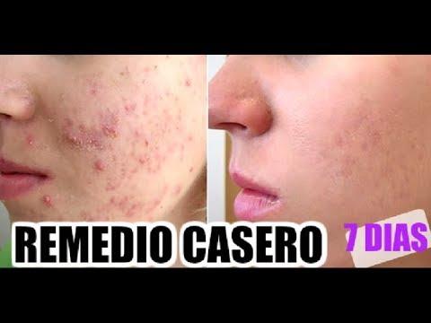 Mascarilla casera para el acne