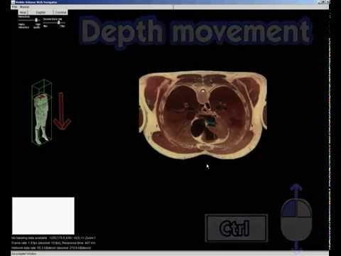 Anatomia Corpo Umano 3D con il Visible Human Server