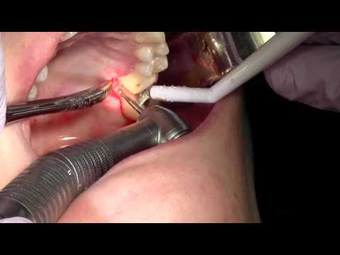 Clinical Crown Lengthening, Tooth #14