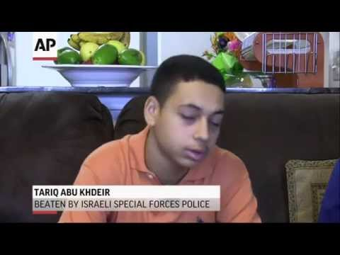 Exclusive: American Beaten in (Israel) Speaks part 2 7/21/14