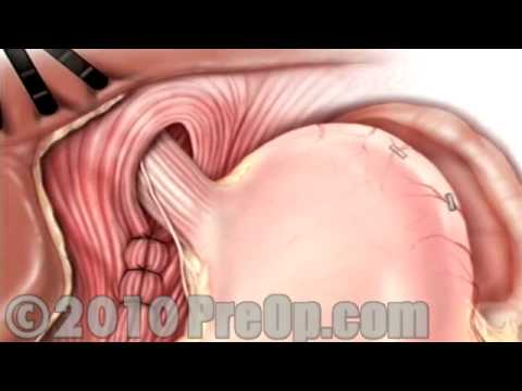 Hernia Hiatal Laparoscopic PreOp® Patient Education