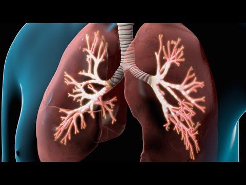 Chronic Obstructive Pulmonary Disease (COPD) -2nBPqSiLg5E