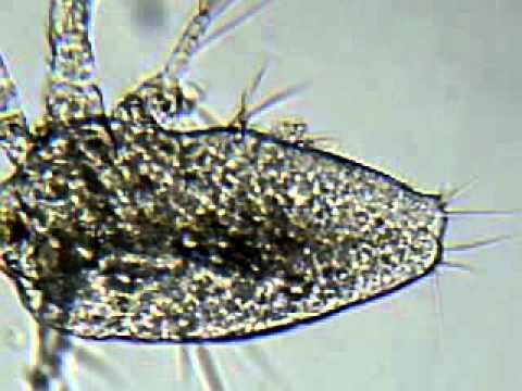 Restos de zooplancton (Umia 2011) 3.3gp
