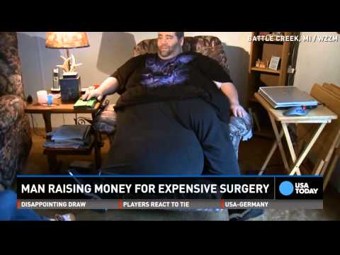 Watch: Man with 100lb scrotum was told to lose weight