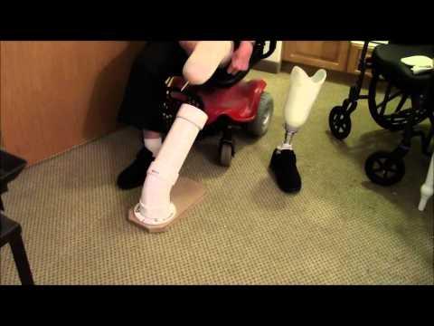 Prosthetic leg attachment assist