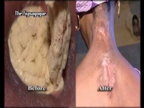 Disgusting Neck/ Back Ulcer Healed After TB Joshua Prayer