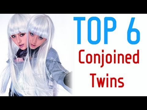 Top Six Conjoined Twin Pairs in History