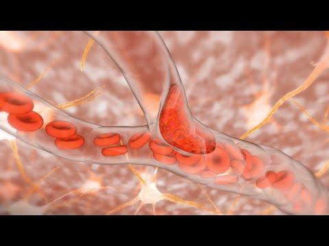 Ischemic Stroke -7FR1TsKLoDI