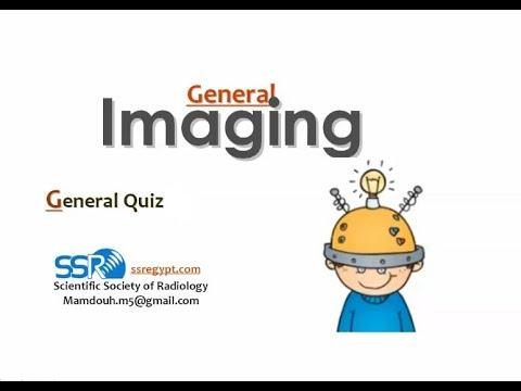 General Radiological Quiz cases (V) - Prof Dr. Mamdouh Mahfouz (In Arabic)