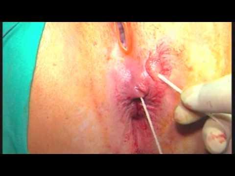 Tratamiento de la fístula de ano con cola biológica