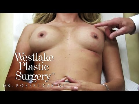 Breast Massage Video: Asymmetry with Implant Position - Robert Caridi, MD