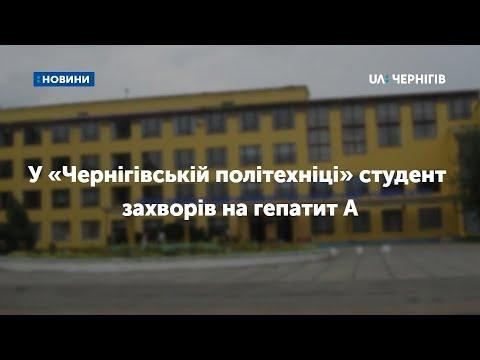 У «Чернігівській політехніці» студент захворів на гепатит А. ВІДЕО