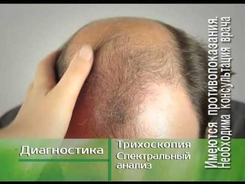 Асд фракция 2 для роста волос