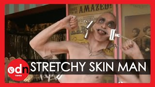 Man With the Stretchiest Skin