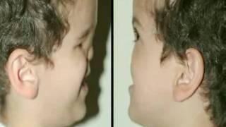 Mohammad Karimi Bocah Iran yang Hanya Punya Muka Setengah. Mo, yang lahir di Iran ini harus menjalani operasi muka ke-19 sebagai cara bagi para dokter untuk memperbaiki kerusakan yang ia alami saat lahir, di mana hampir merenggut nyawanya.