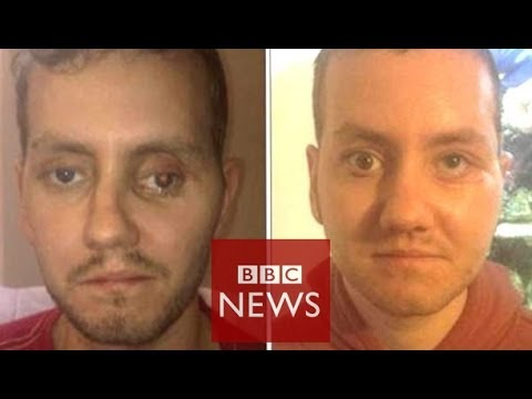 '3D printer helped rebuild my face' - BBC News