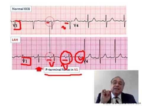 ECG P WAVE