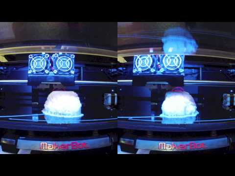 The Brain - MRI to 3D Print