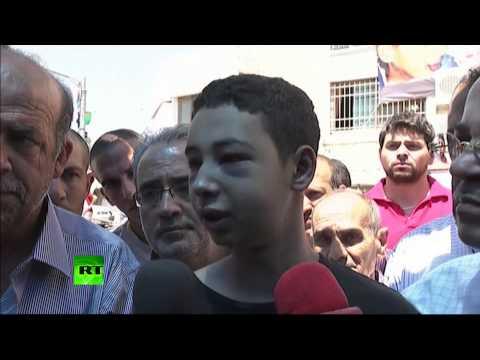 I'm speechless' (Palestinian)-US teen beaten by Israeli police under house arrest  7/6/14