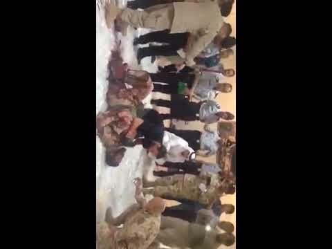 شاهد: الحرس الوطني السعودي يوضح حقيقة فيديو بتر قدم