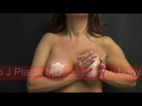 Breast Massage
