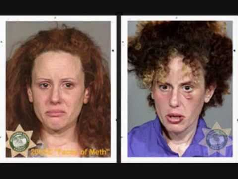 Faces of meth users