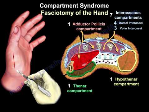 Compartment Syndrome Of The Hand &amp; Finger - Everything You Need To Know - Dr. Nabil Ebraheim