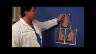 Dr. Max Polo - Breast Reduction