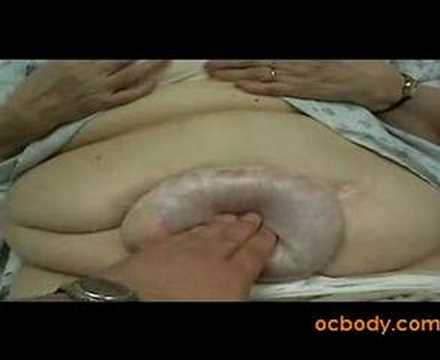 Large Belly Hernia from Dr D of CosmeticSurgeryTruth.com