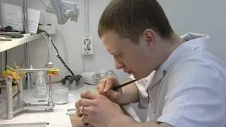 Протезирование коронками на металлокерамике