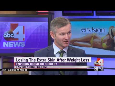 Losing the Extra Skin After Weight Loss
