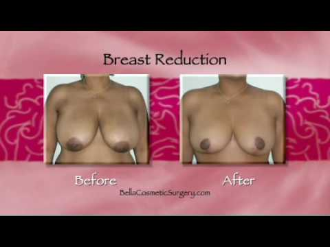 Bella Breast Procedures