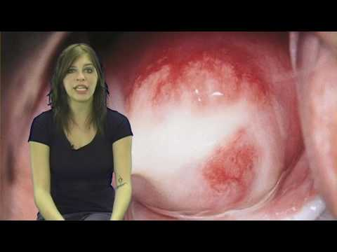 STDs, Sexually Transmitted Disease 1, Chlamydia Infection Symptoms Hot Facts Girl Kayleigh