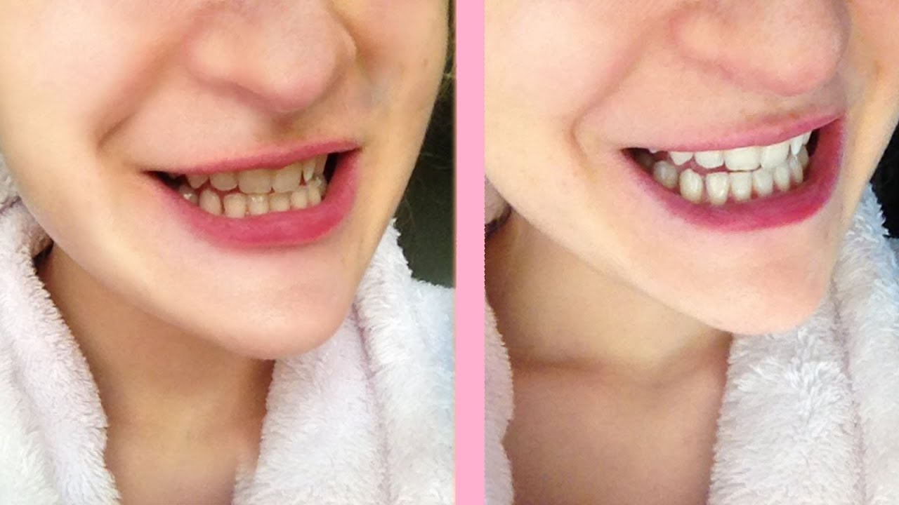 Crest 3d white strips before and after pictures Crest 3D White Whitestrips Classic Vivid Teeth Whitening