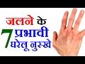 जलने पर करिए ये घरेलू नुस्खे Health Tips in Hindi For Burn Treatment by Sonia Goyal