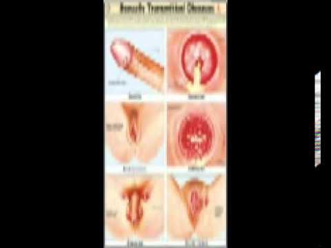 Sexually Transmitted Diseases Sign Symptoms Treatments HD