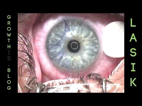 LASIK: A Patient's Perspective - UCITxcUM8JcsiWEYm15k2Olw