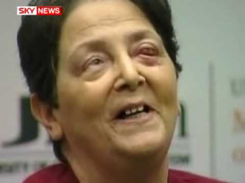 Weird news: Surgeons use tooth to create new eye for woman