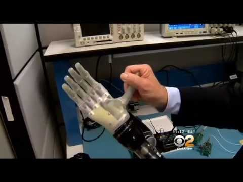 Retired Marine Given New Future With Bionic Arm After Amputation