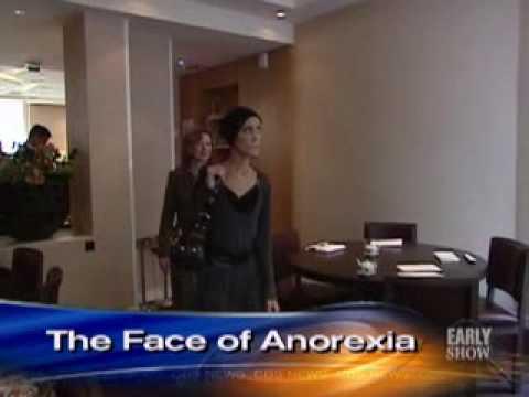 Anorexia-s Living Face (CBS News)