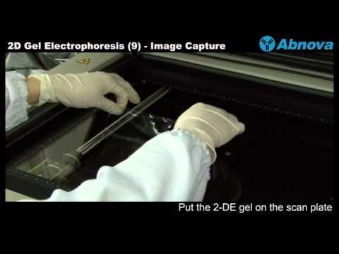 2D Gel Electrophoresis (9) Image Capture-Laser Scanner