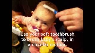Cradle Cap No More!  Rid Your Baby Of Ugly Cradle Cap Forever, VERY Cheaply & Easily!