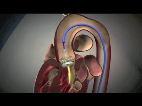 Transcatheter Aortic Valve Implantation (TAVI)