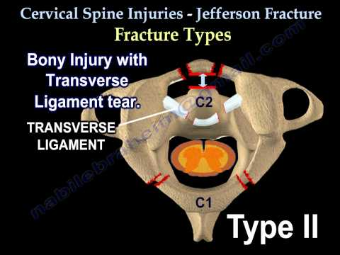 Cervical Spine Injuries Jefferson Fracture - Everything You Need To Know - Dr. Nabil Ebraheim