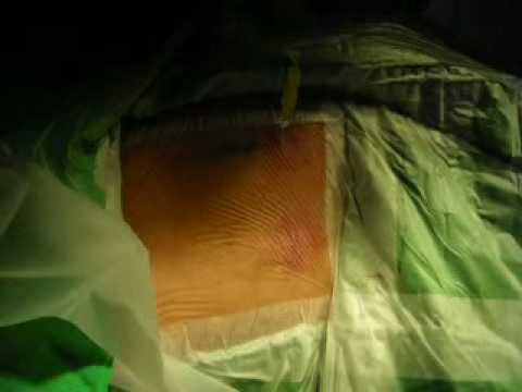 Operacion de Hernia Discal con Discolisis