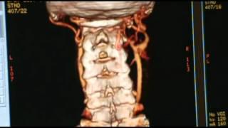 tomografía computarizada 2