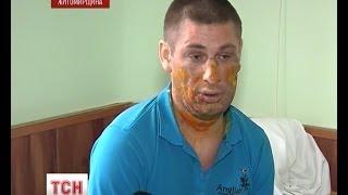 27- летний житель Коростеня едва себя не сжег заживо