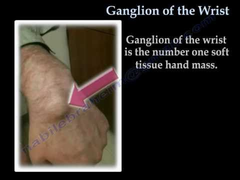 Ganglion Of The Wrist - Everything You Need To Know - Dr. Nabil Ebraheim