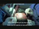 hair transplant fue donor extraction transplante cabello