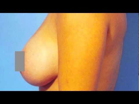 Do Breast Implants Feel Natural?